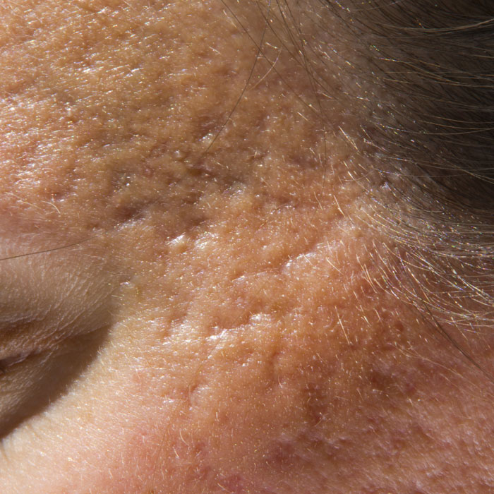 Laser resurfacing for acne scars